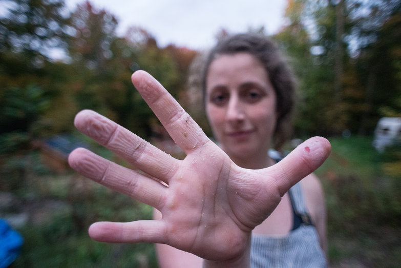 Tara's Hands with Lime-Induced Sores