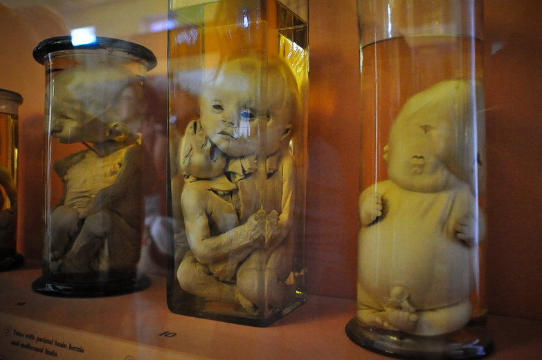 Scientific Collection of Kunstkamera: Fetal Deformaties